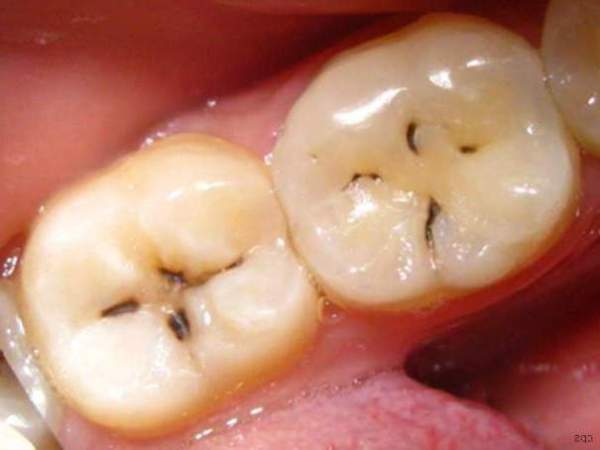 Кариес зубов фото стадии лечение