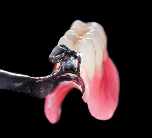 Какой зубной протез лучше поставить