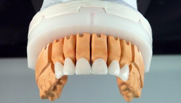 Циркониевая коронка на передний зуб цена