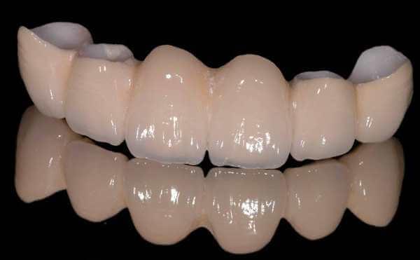 Циркониевые коронки на передние зубы отзывы