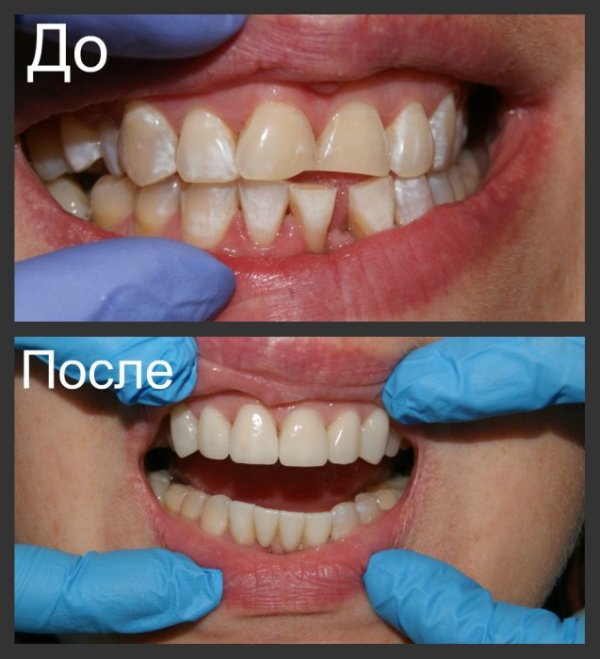 Циркониевая коронка на передний зуб установка стоимость