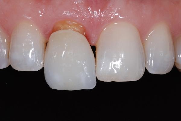 Циркониевые коронки на передние зубы фото