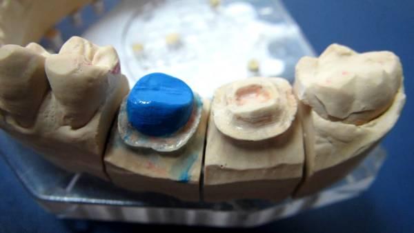 Вкладка в зуб под коронку фото