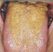 Причины желто коричневого налета на языке