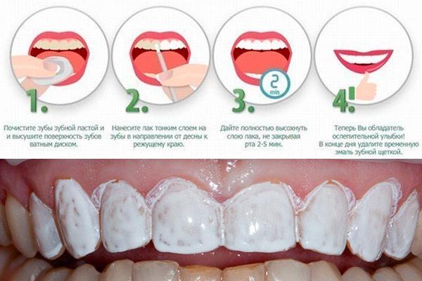 Покрытие зубов фторсодержащим лаком