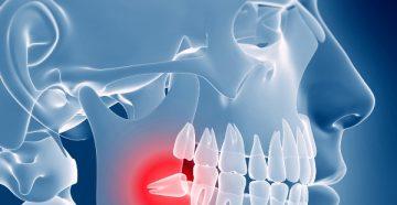 Болит зуб мудрости – что делать дома и как устраняют симптом в стоматологии