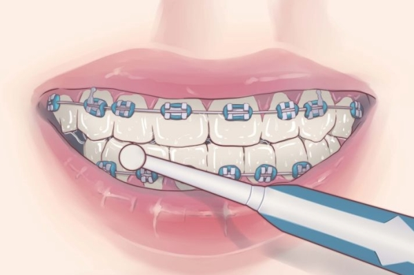 Зубная щетка для брекетов фото