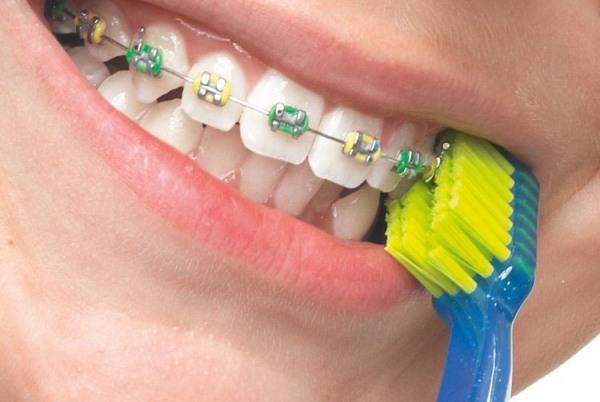 Набор зубных щеток для брекетов