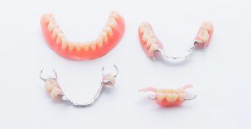 Виды зубных протезов и какие лучше установить