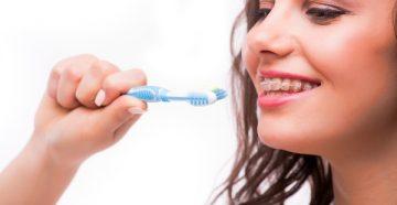 Ассортимент зубных щеток для брекетов и их особенности