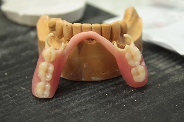 Ацеталовые зубные протезы фото