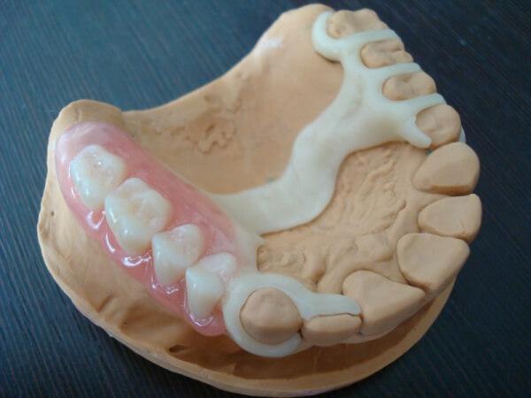 Ацеталовые зубные протезы отзывы