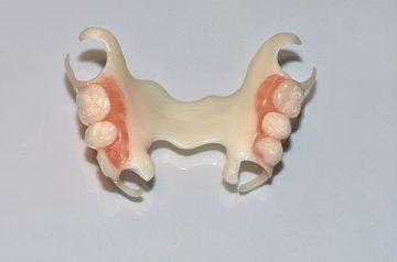 Показания к применению ацеталового зубного протеза