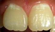 Как избавиться от белых пятен на зубах