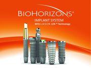 Особенности имплантов Биогоризонт