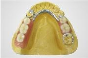 Особенности бюгельного протеза на нижнюю челюсть