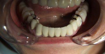 Фото различных бюгельных протезов на нижнюю челюсть