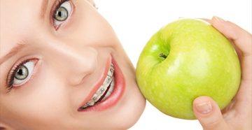 Сроки и эффективность лечения брекетами In Ovation