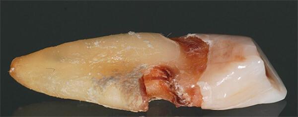 Клиническая картина кариеса цемента фото