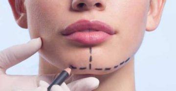 Этапы исправления прикуса хирургическим путем и возможные осложнения