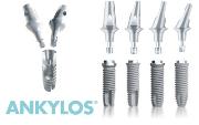 Особенности имплантов Ankylos