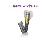Качество имплантов Имплантиум