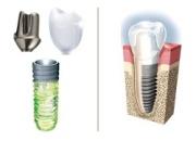 Особенности имплантов Straumann
