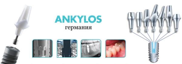 Ankylos импланты официальный сайт