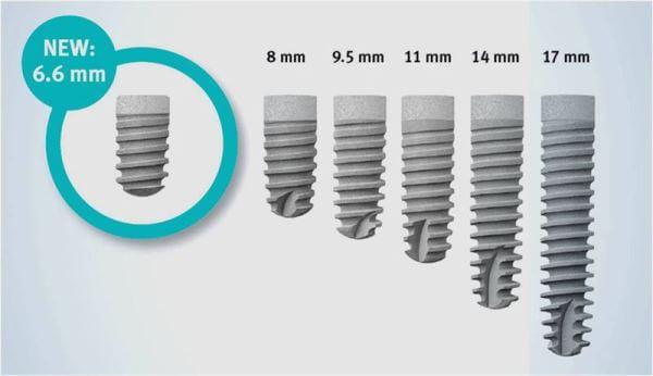 Системы имплантов friadent xive