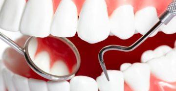 Причины и стоматологические методы лечения хронического фиброзного периодонтита