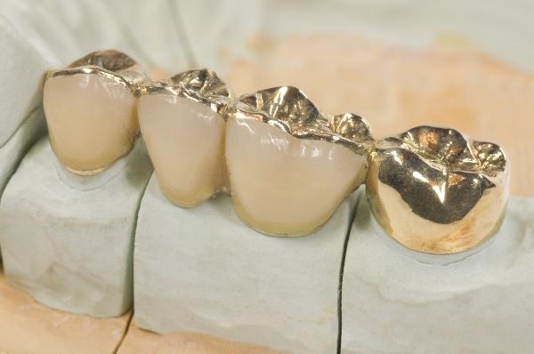 Как почистить золотые коронки от зубов