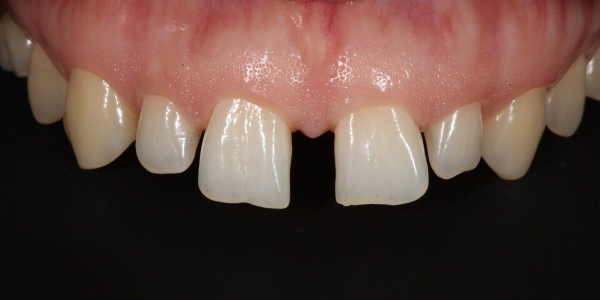 Тремы зубов как убрать, до и после