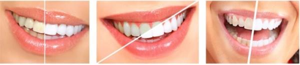 Отбеливание зубов карандашом luxury white pro