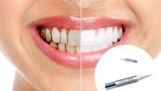 Состав и эффективность карандаша для отбеливания зубов Luxury White Pro
