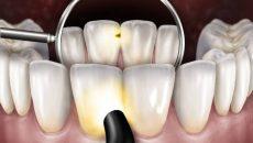 Как проявляется кариес между передними зубами и способы его лечения