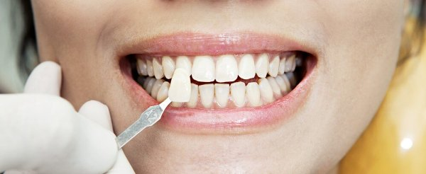 Кариес между передними зубами фото до и после