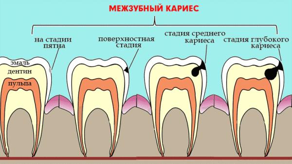 Лечат кариес между передними зубами