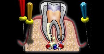 Кариес цемента - лечить или удалять зуб