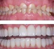 Фото до и после лечения композитными винирами