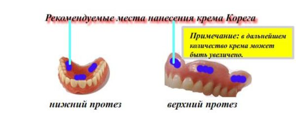 Корега крем для фиксации зубных протезов инструкция