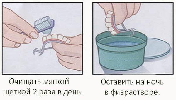 Съемные зубные протезы квадротти