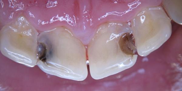 Кариес между передними зубами ребенка