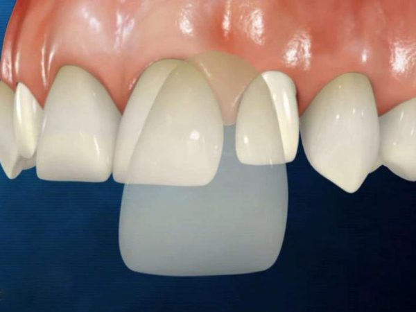 Люминиры на зубы цена