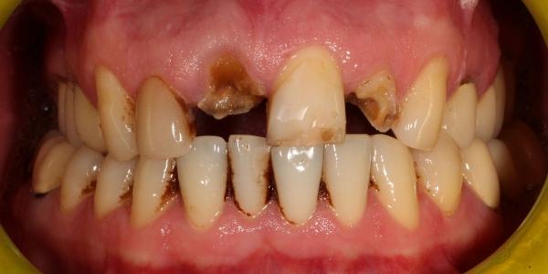 Металлокерамические коронки на передние зубы фото