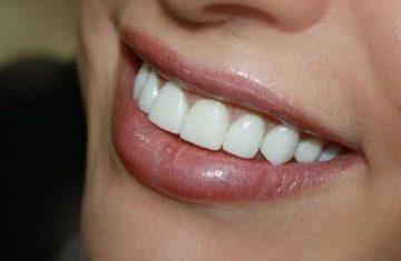 Процесс изготовления и установки металлокерамических коронок на передние зубы