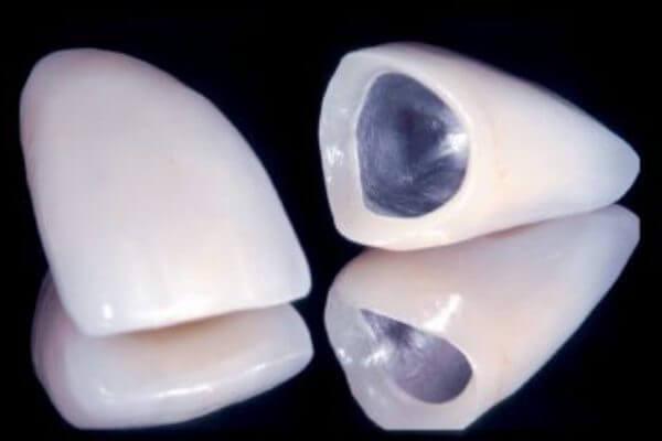Как выглядит металлокерамическая коронка на переднем зубе
