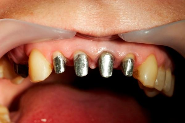 Металлокерамические коронки на передние зубы отзывы