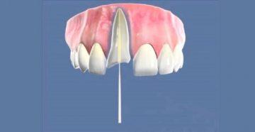 Наращивание зуба на металлический и неметаллический штифт различной формы