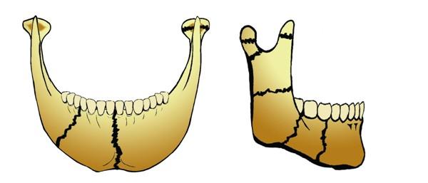 Перелом нижней челюсти: классификация, симптомы, лечение, прогноз