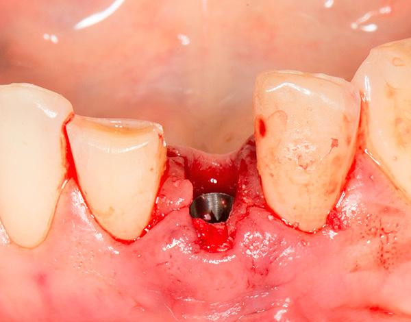 Осложнения после имплантации нижних зубов